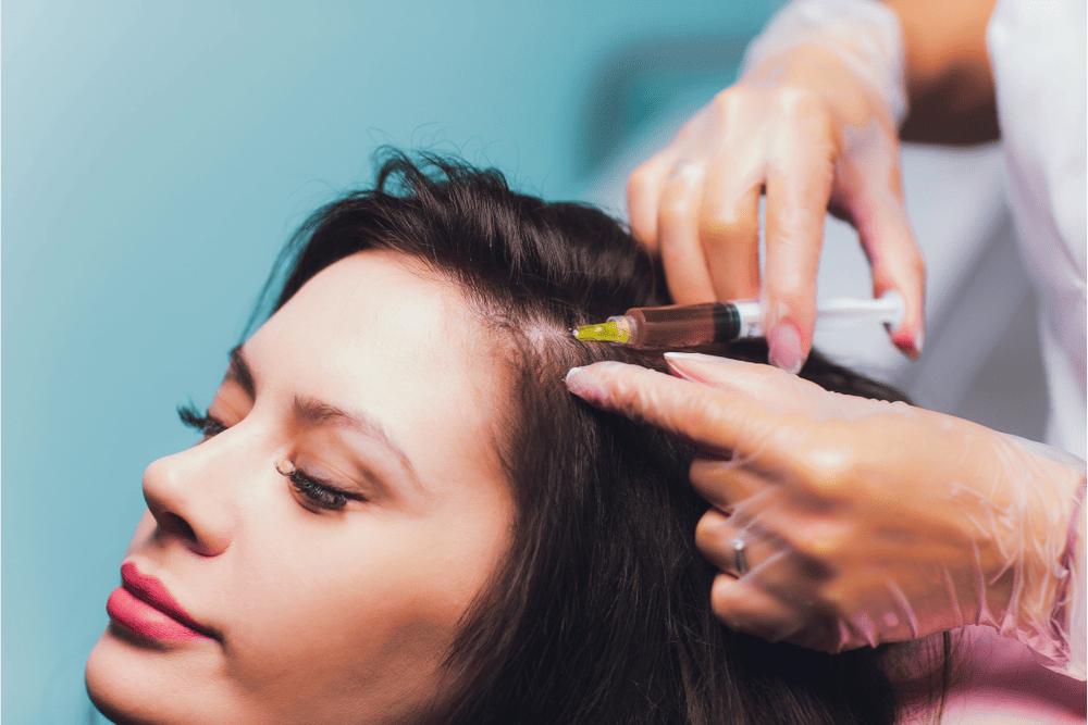 SCALP MICROPIGMENTATION VS HAIR TRANSPLANTS: WHICH IS BEST?